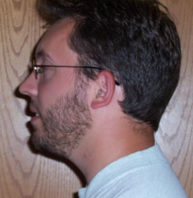 Side view - facial hair