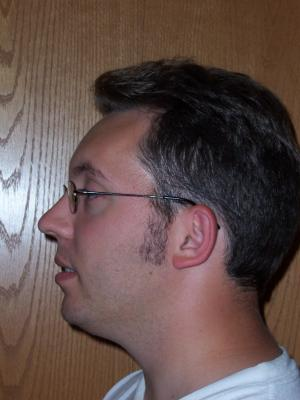 Side view - no facial hair